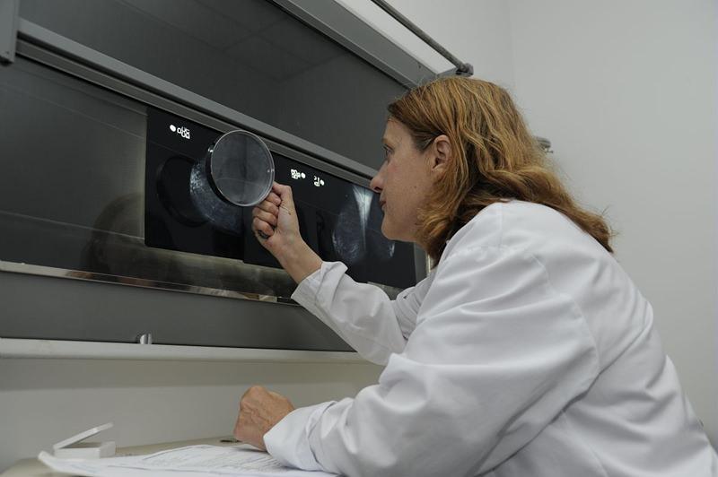 une radiologue munie d'une loupe pratique une deuxième lecture d'une échographie d'un sein