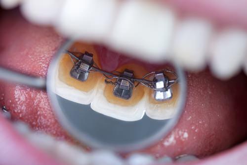 Miroir dentaire-bagues dentaires©Igor Mojzes-Fotolia