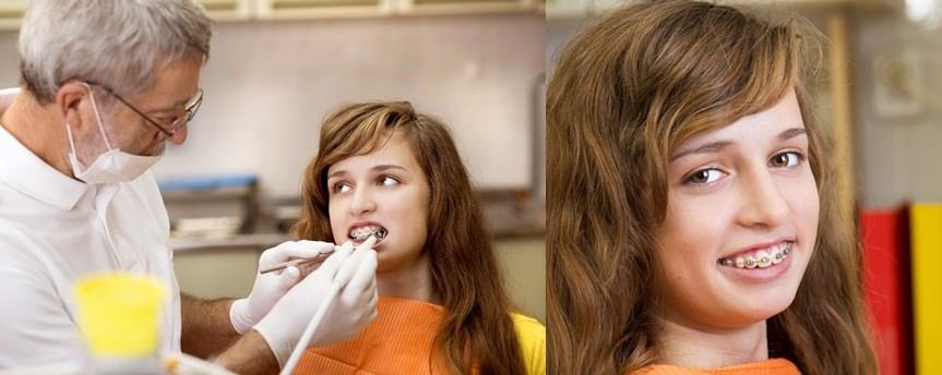 Soins orthodontie_Fotolia© Halfpoint, L'orthodontie