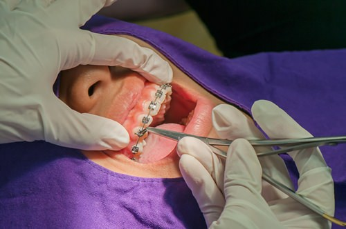 Soins orthodontie©yotrakbutda-Fotolia