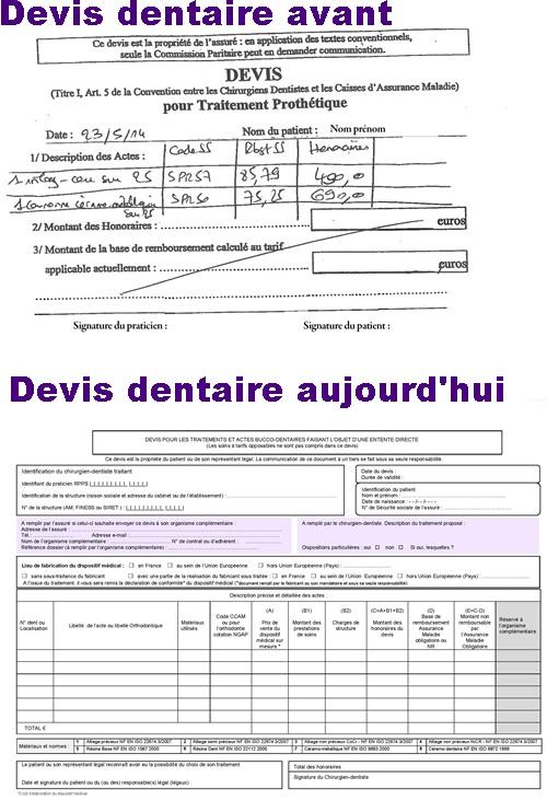 CCAM dentaire_devis-avant-aujourd'hui