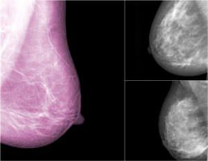 mammographie de dépistage, XRay