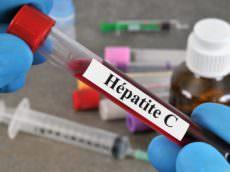 hépatite C chronique