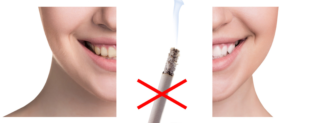 retrouver des dents blanches apr s l arr t du tabac sant pratique paris. Black Bedroom Furniture Sets. Home Design Ideas
